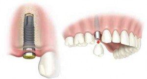 dental-implant-picture2